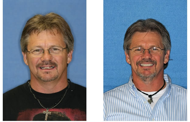 Before and After Images Dental Implants