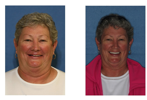 Before and After Images Dental Implants new smile