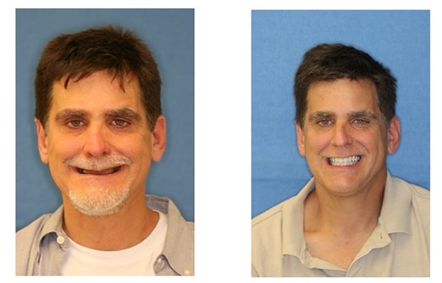 Before and After Images Dental Implants more confidence