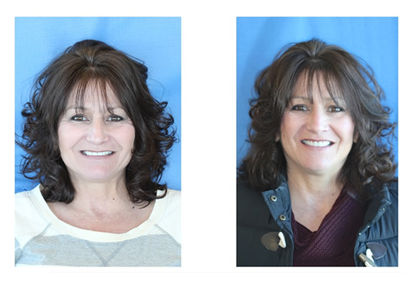 Before and After Images Dental Implants a great new smile