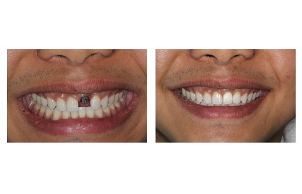 Before and After Images Dental Implants front tooth replacement