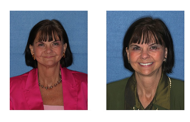 Before and After Images Dental Implants happy smile