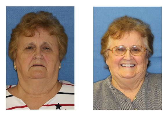 Before and After Images Dental Implants improved simle