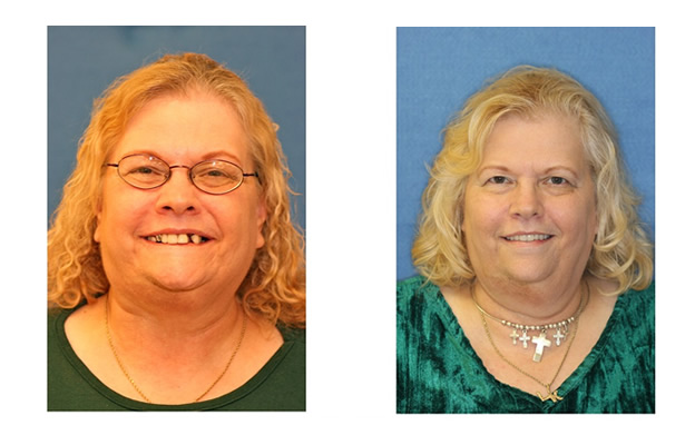 Before and After Images Dental Implants new smile new you