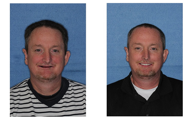 Before and After Images Dental Implants new smile opportunities