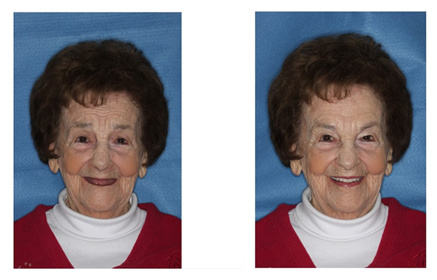 Before and After Images Dental Implants beaming smile