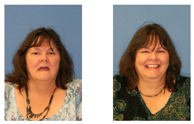 Before and After Images Dental Implants happy health smile